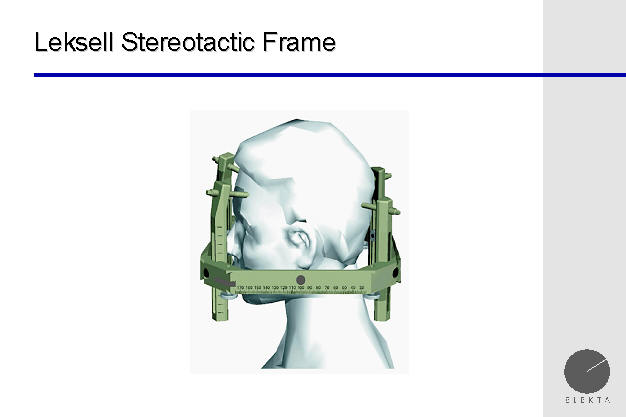 leksell g frame for stereotactic treatment