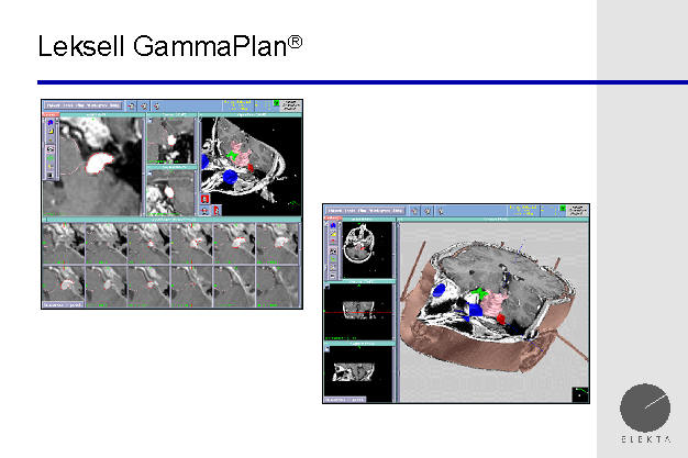 gamma knife planning station, tumor