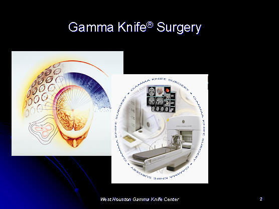 gamma knife review, Houston, Texas, TX, USA