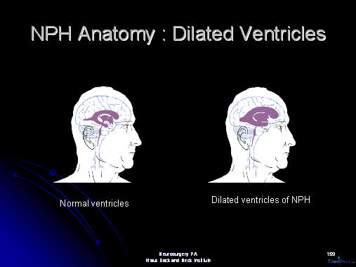dilated ventricles in nph, houston, texas