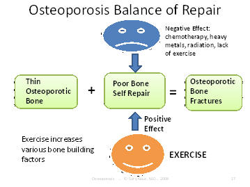 osteoporosis balance of repair of fractures, Houston, Texas