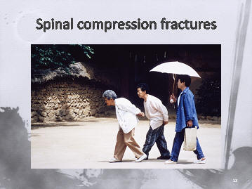 osteoporotic compression fractures of the spine in a Korean family, Houston, Texas