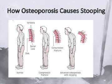 osteoporosis, osteoporotic, bone density,fractures ...