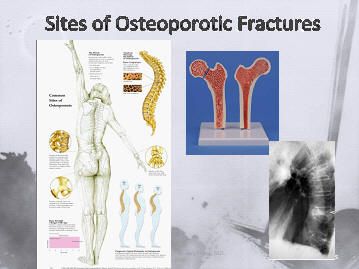 the spine (vertebral bodies), the femur and the wrist are most common locations for osteoporosis related fractures