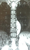 mri scan; thoracic spine; low back pain