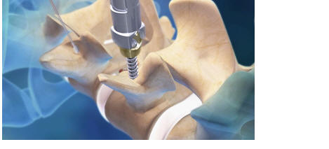 pedicle screw being placed with sextant, medtronic